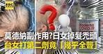 打莫德納有副作用?日女掉髮成禿頭 台女打第二劑竟「幾乎全聾」@東森新聞 CH51