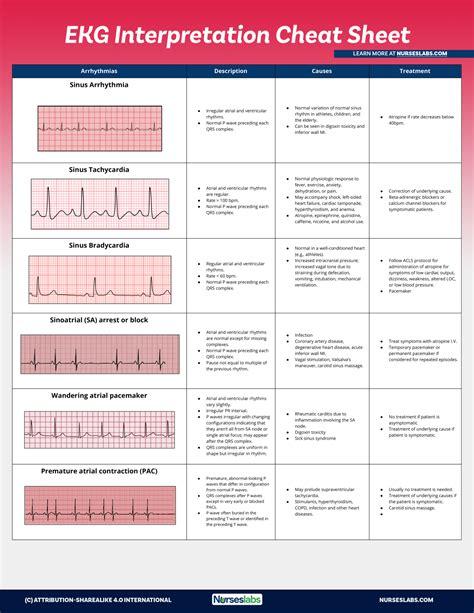 ACLS-EKGCheat-Sheet