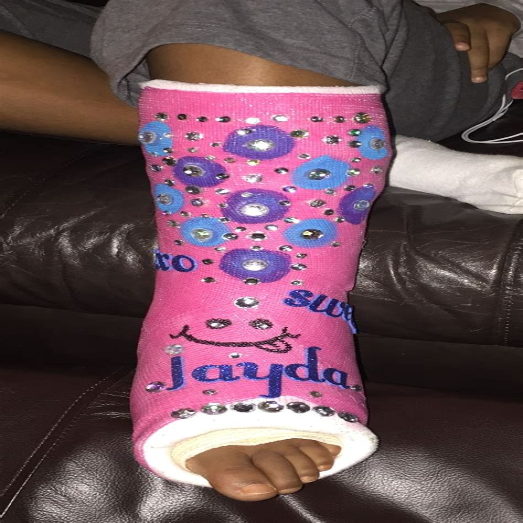 Knee-ScooterBroken-Leg